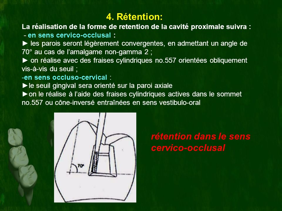 4. Rétention: rétention dans le sens cervico-occlusal