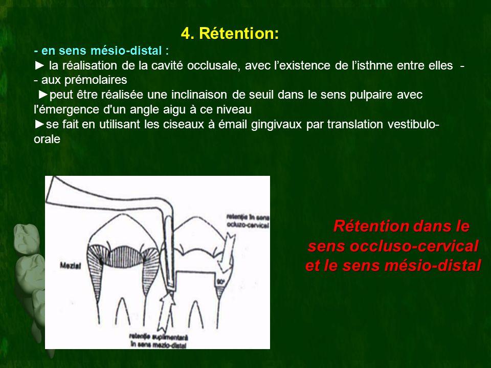 Rétention dans le sens occluso-cervical et le sens mésio-distal