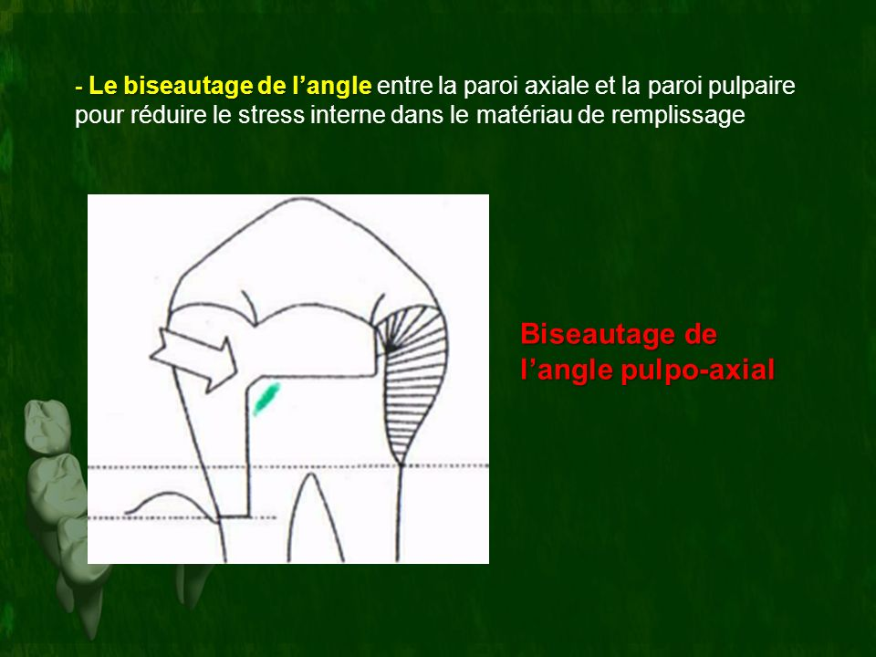 Biseautage de l'angle pulpo-axial