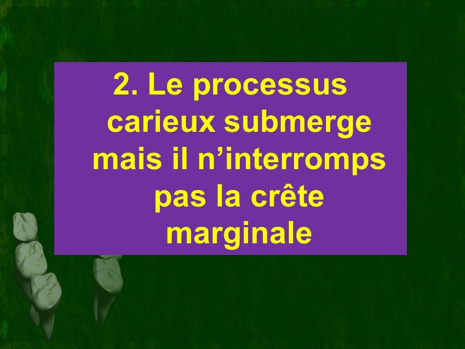 2. Le processus carieux submerge mais il n'interromps pas la crête marginale