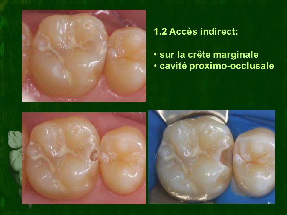 1.2 Accès indirect: sur la crête marginale cavité proximo-occlusale