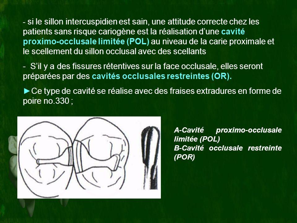 si le sillon intercuspidien est sain, une attitude correcte chez les patients sans risque cariogène est la réalisation d'une cavité proximo-occlusale limitée (POL) au niveau de la carie proximale et le scellement du sillon occlusal avec des scellants