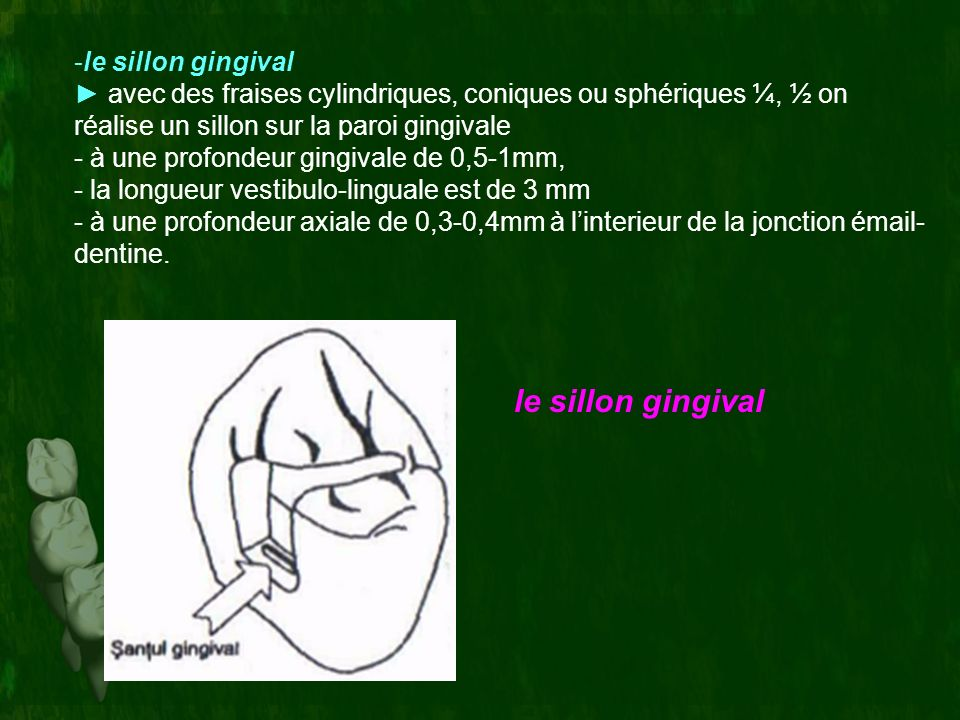 le sillon gingival le sillon gingival