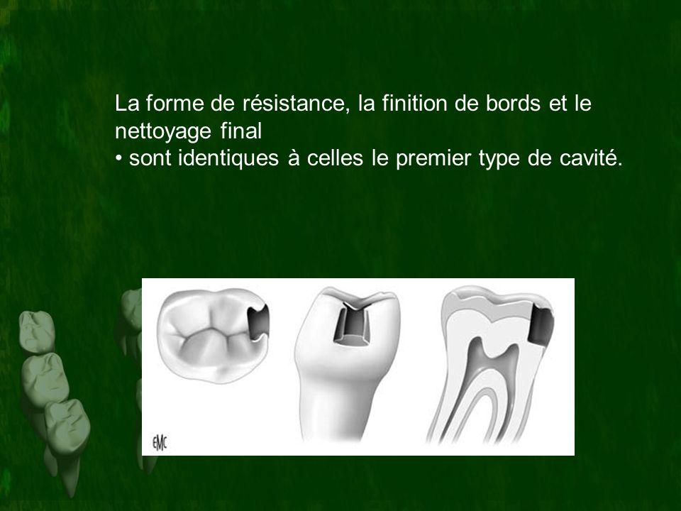 La forme de résistance, la finition de bords et le nettoyage final • sont identiques à celles le premier type de cavité.