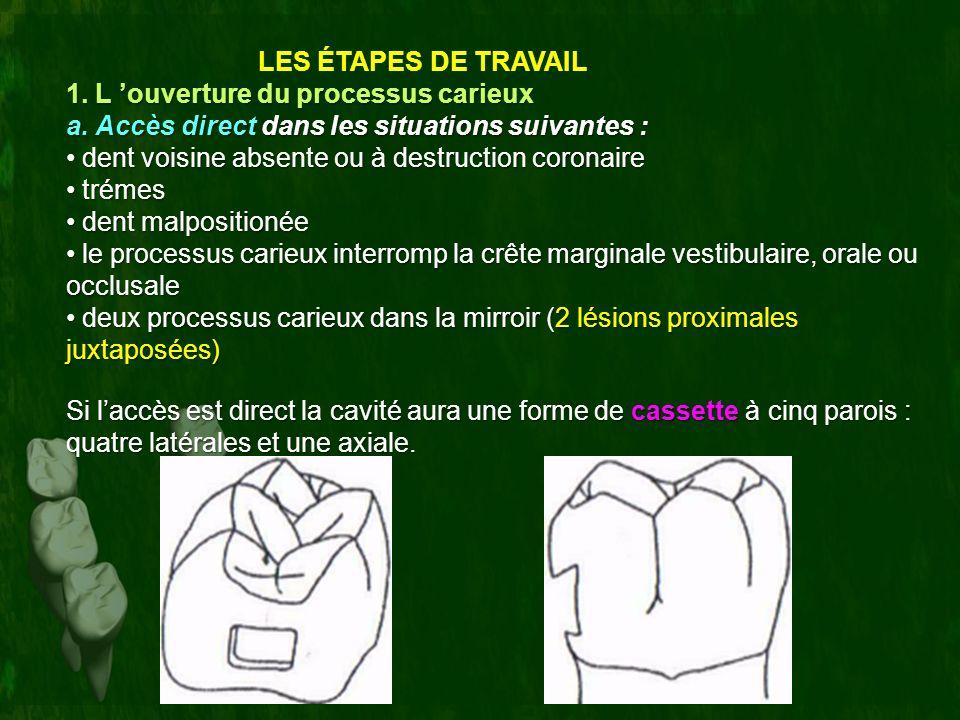 LES ÉTAPES DE TRAVAIL 1. L 'ouverture du processus carieux. a. Accès direct dans les situations suivantes :