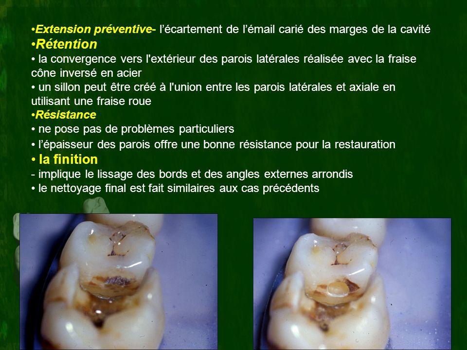Extension préventive- l'écartement de l'émail carié des marges de la cavité