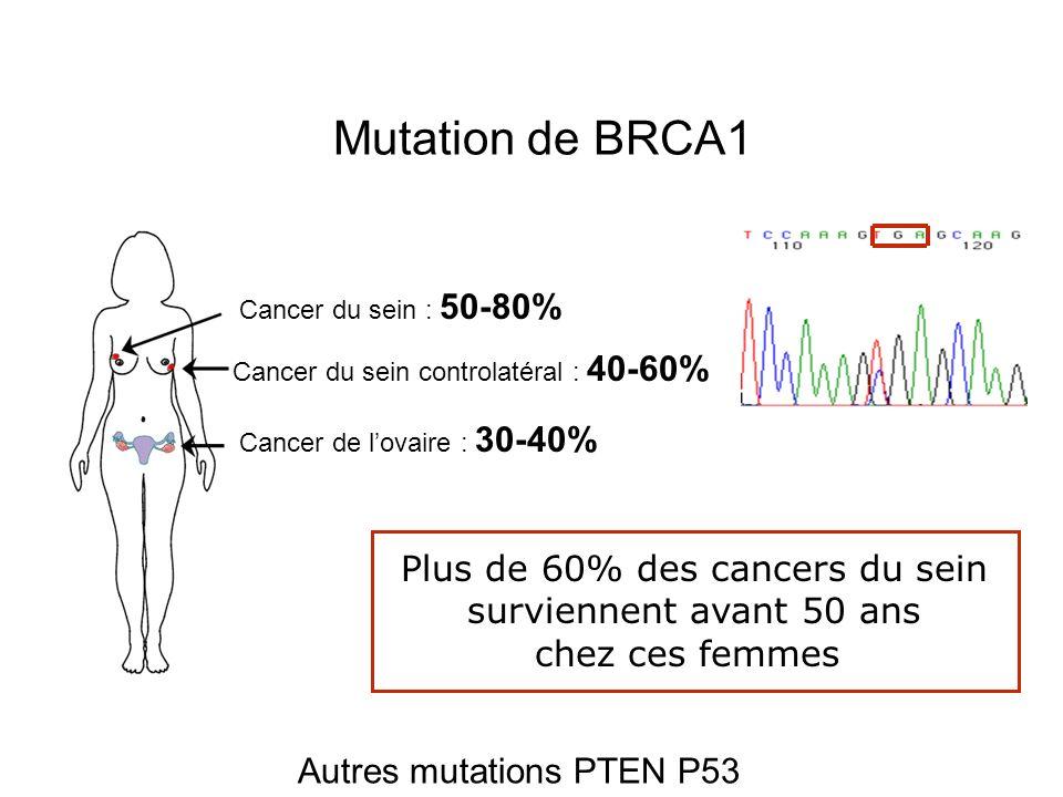 Mutation de BRCA1 Plus de 60% des cancers du sein
