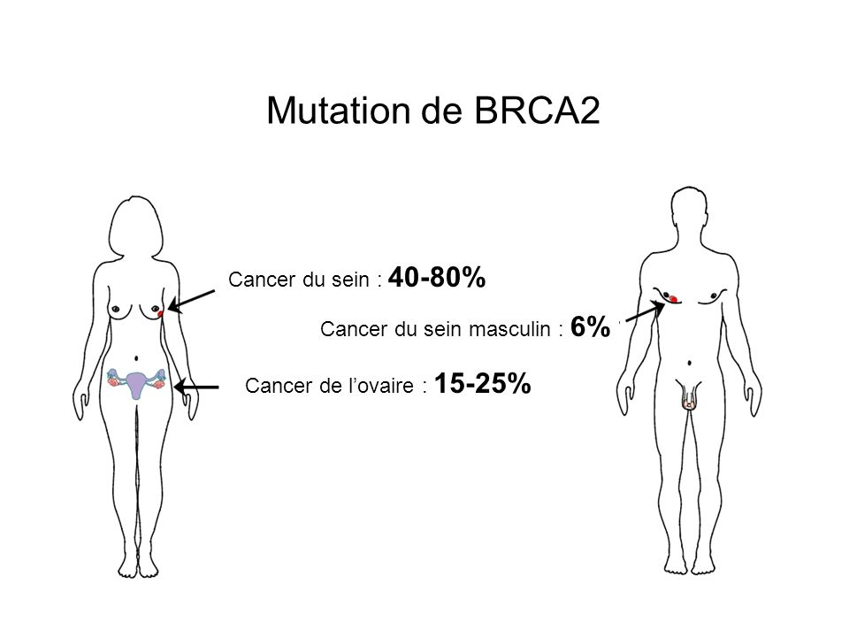 Mutation de BRCA2 Cancer du sein : 40-80% Cancer du sein masculin : 6%
