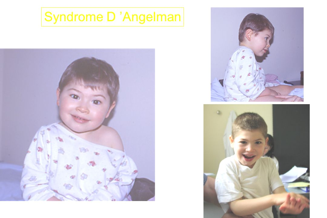 Syndrome D 'Angelman