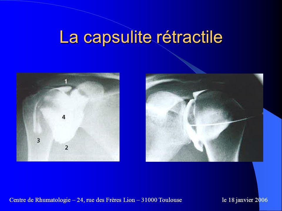La capsulite rétractile