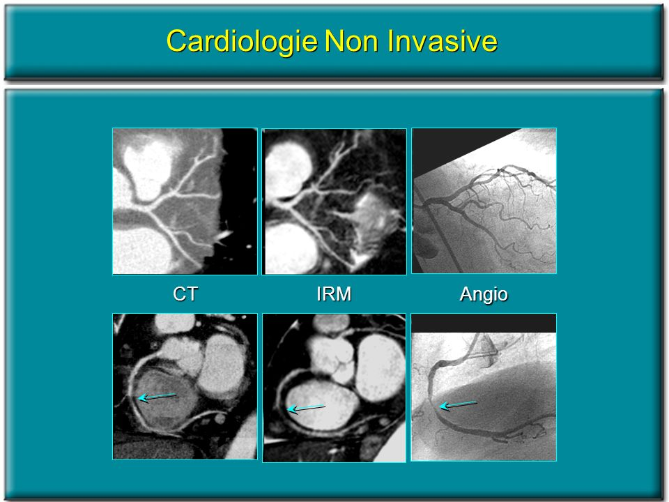 Cardiologie Non Invasive