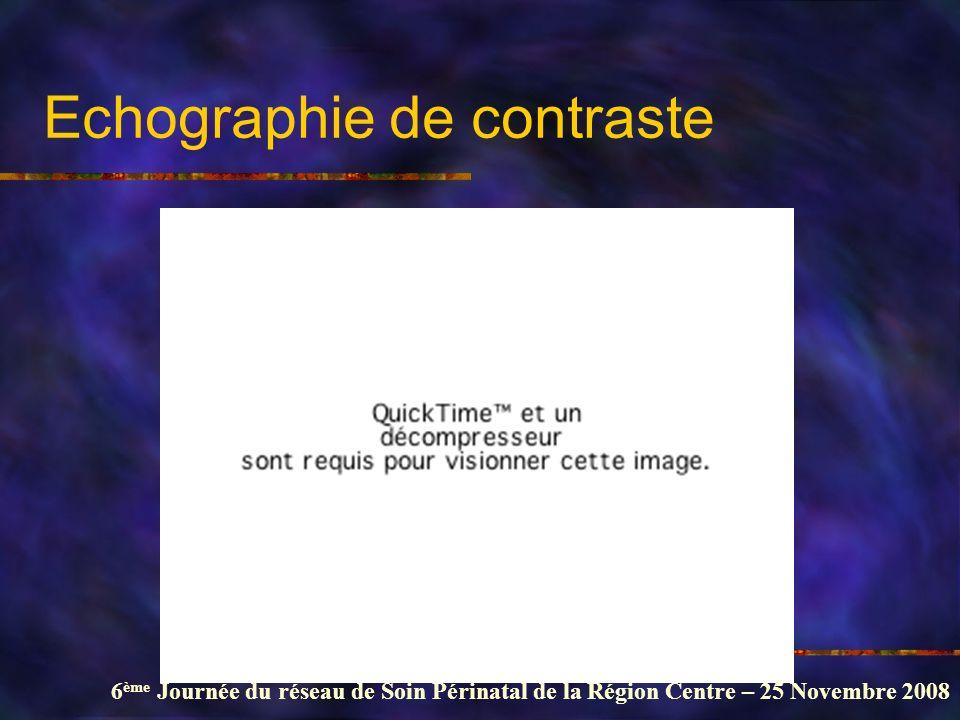 Echographie de contraste