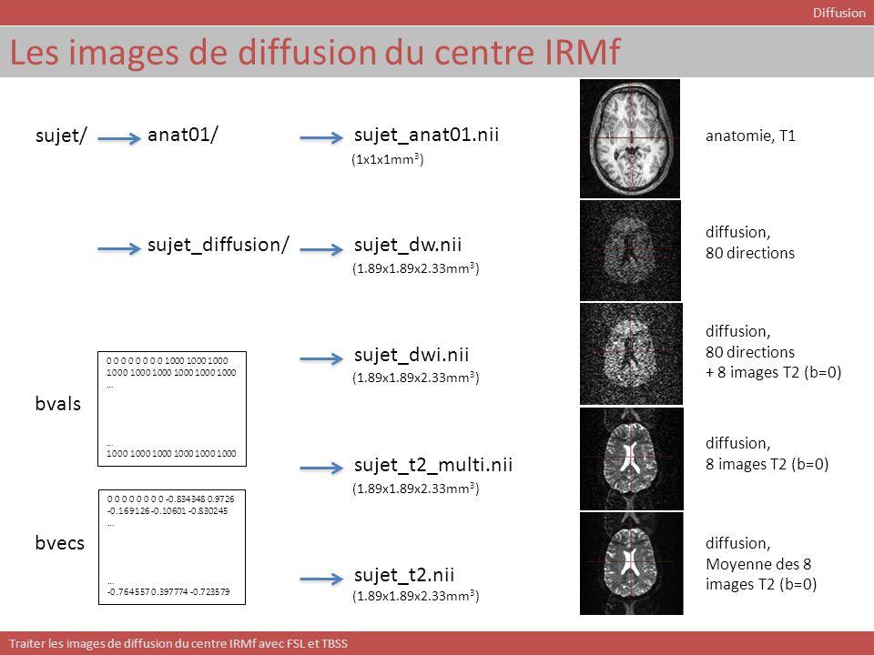 Les images de diffusion du centre IRMf