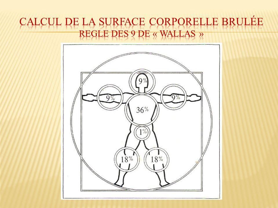 Calcul de la surface corporelle brulée regle des 9 DE « WALLAS »