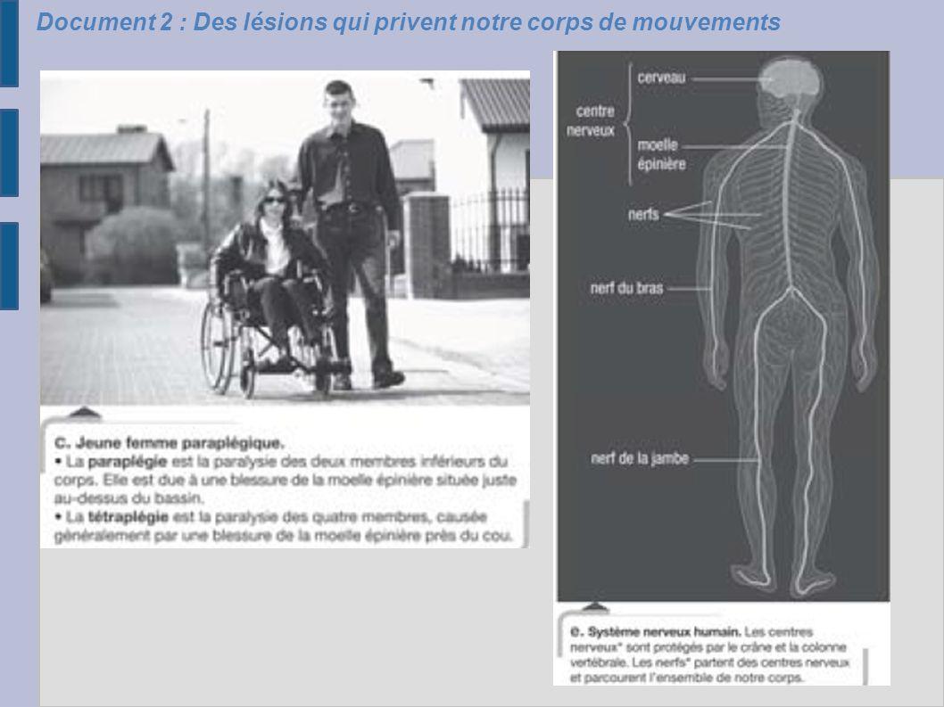 Document 2 : Des lésions qui privent notre corps de mouvements