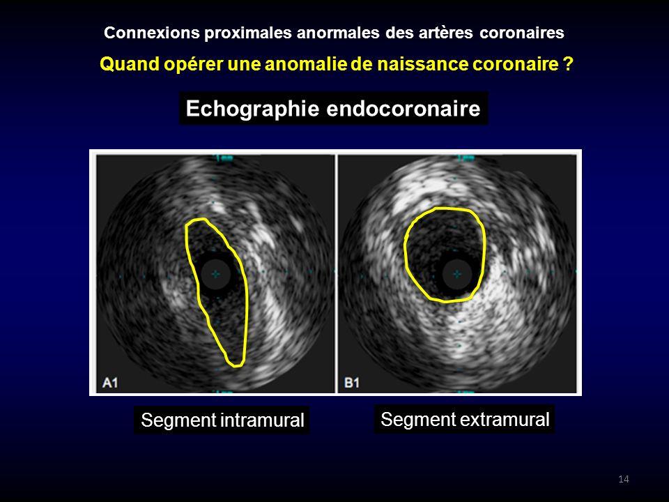 Quand opérer une anomalie de naissance coronaire