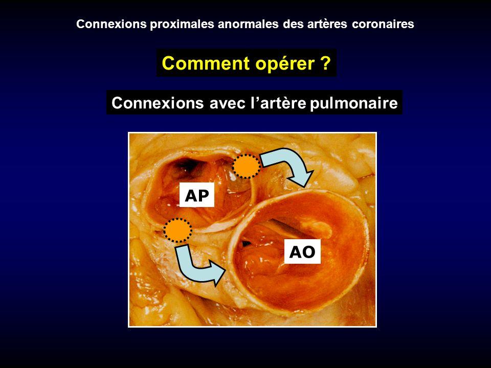 Comment opérer Connexions avec l'artère pulmonaire AP AO