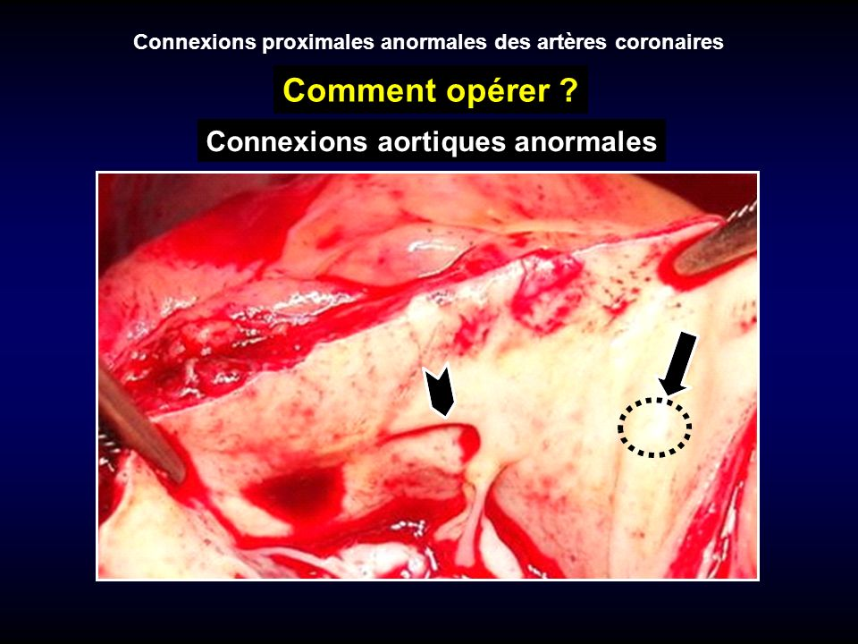Comment opérer Connexions aortiques anormales