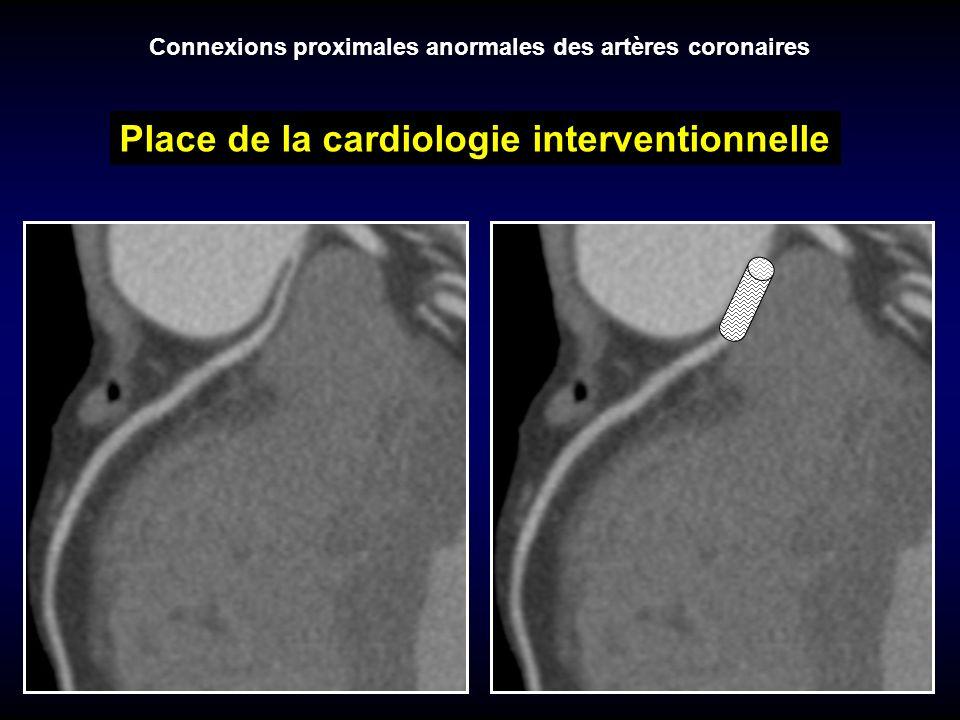 Place de la cardiologie interventionnelle