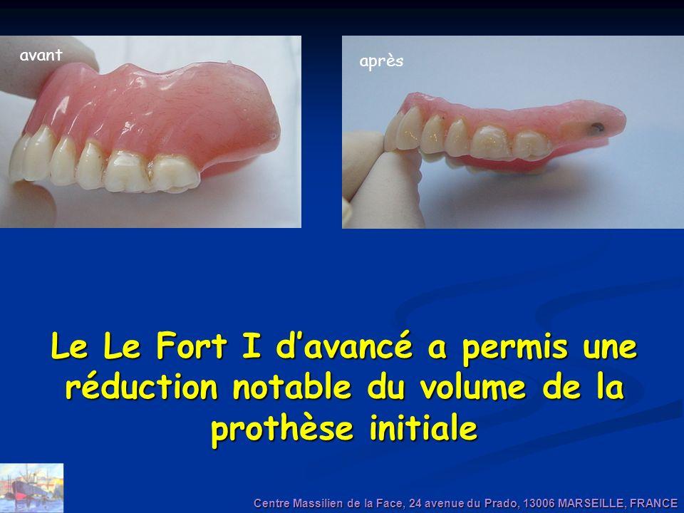 avant après. Le Le Fort I d'avancé a permis une réduction notable du volume de la prothèse initiale.