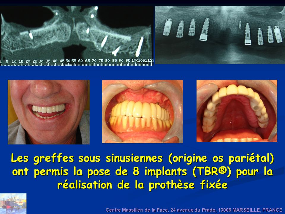 Les greffes sous sinusiennes (origine os pariétal) ont permis la pose de 8 implants (TBR®) pour la réalisation de la prothèse fixée