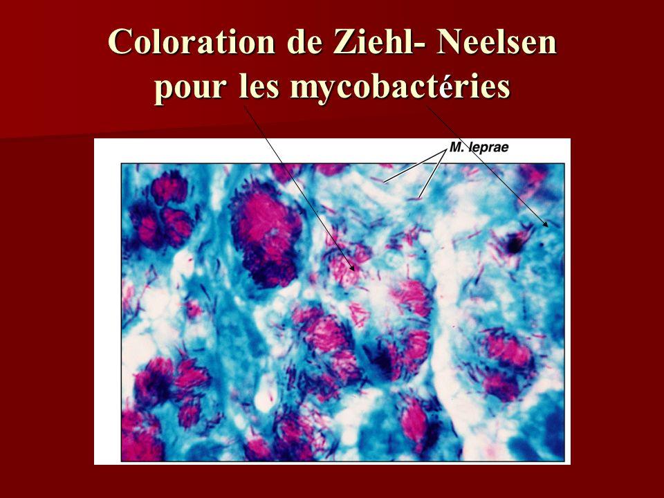 Coloration de Ziehl- Neelsen pour les mycobactéries