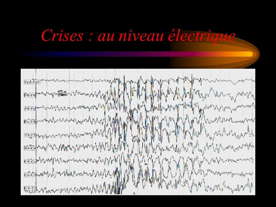 Crises : au niveau électrique