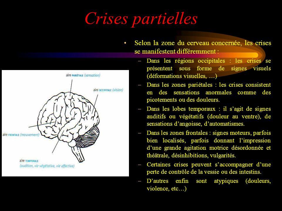 Crises partielles Selon la zone du cerveau concernée, les crises se manifestent différemment :