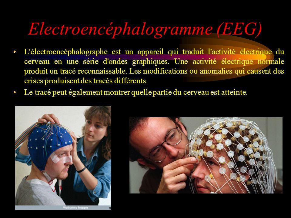 Electroencéphalogramme (EEG)