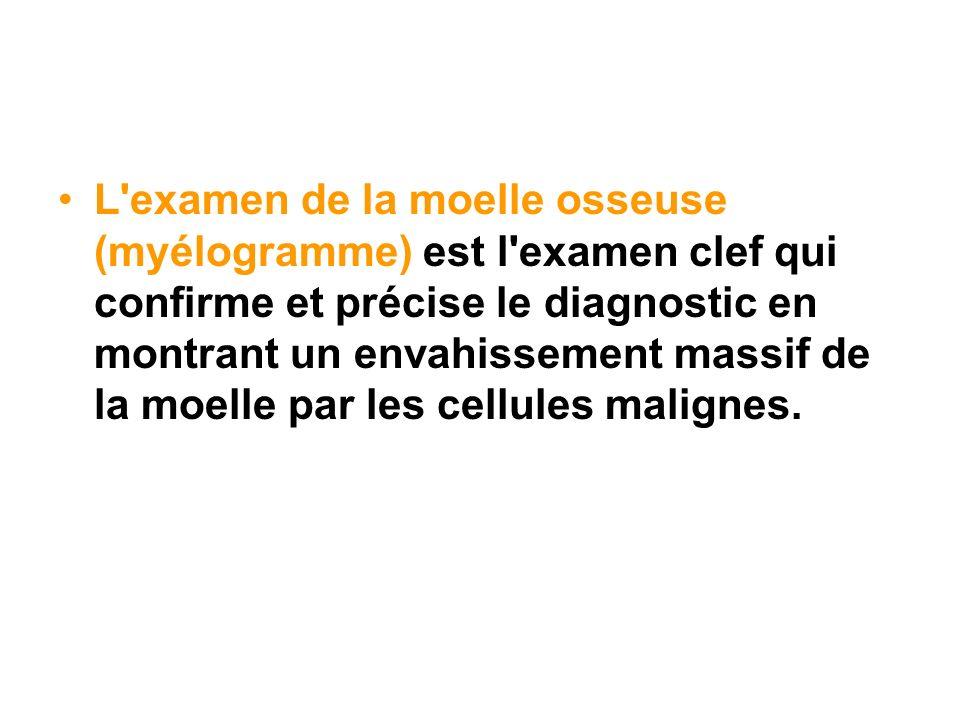 L examen de la moelle osseuse (myélogramme) est l examen clef qui confirme et précise le diagnostic en montrant un envahissement massif de la moelle par les cellules malignes.