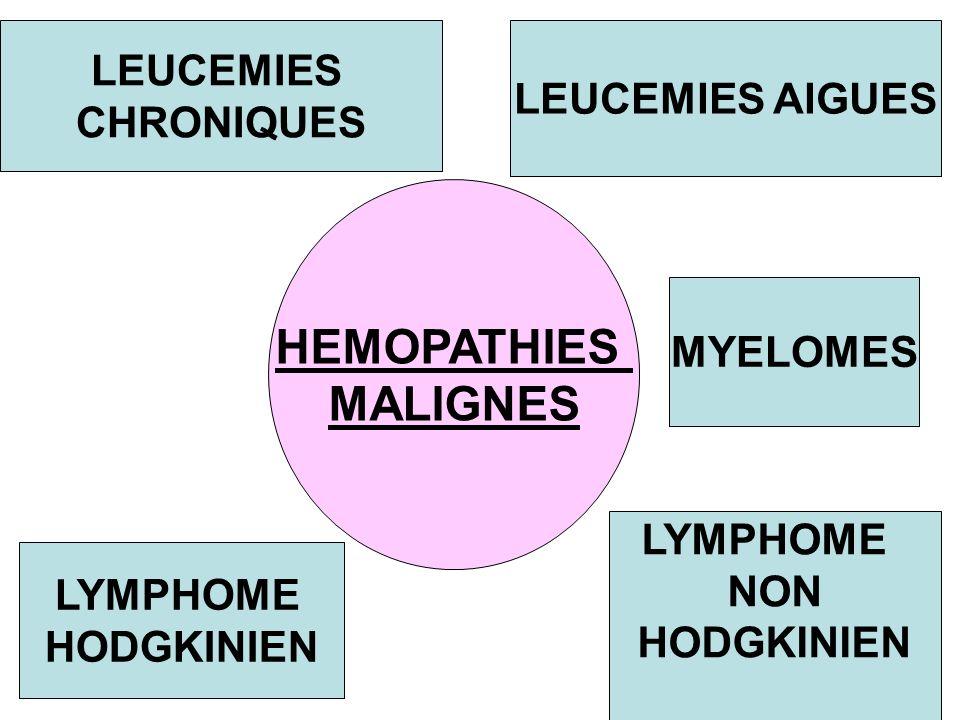 HEMOPATHIES MALIGNES LEUCEMIES LEUCEMIES AIGUES CHRONIQUES MYELOMES