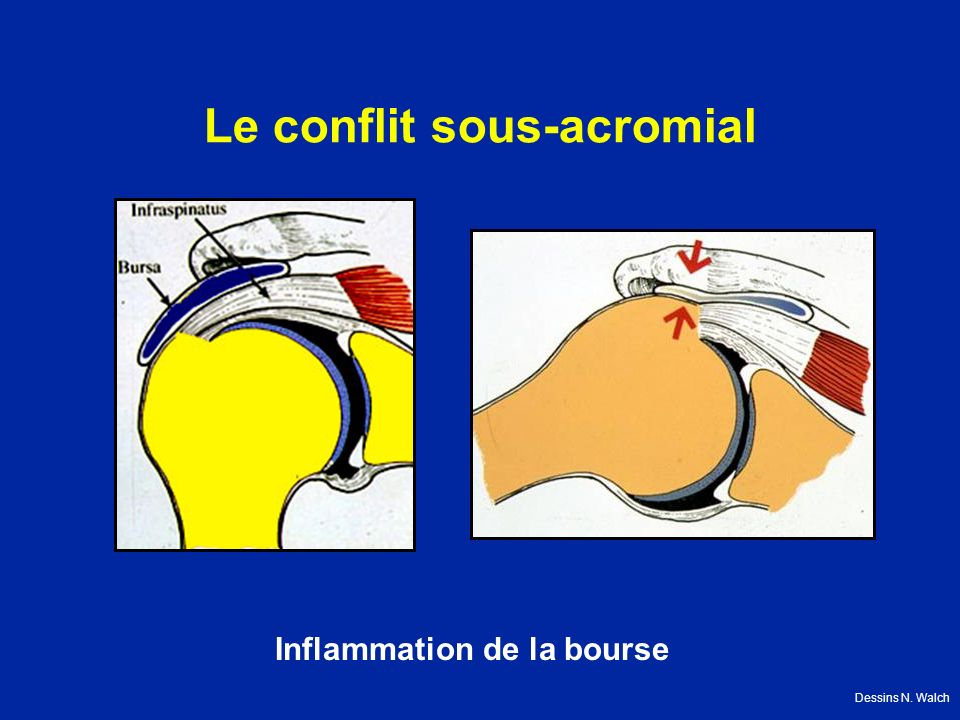 Le conflit sous-acromial