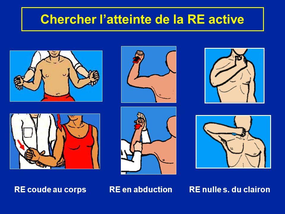 Chercher l'atteinte de la RE active