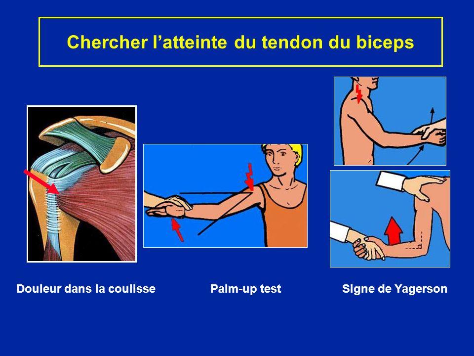 Chercher l'atteinte du tendon du biceps