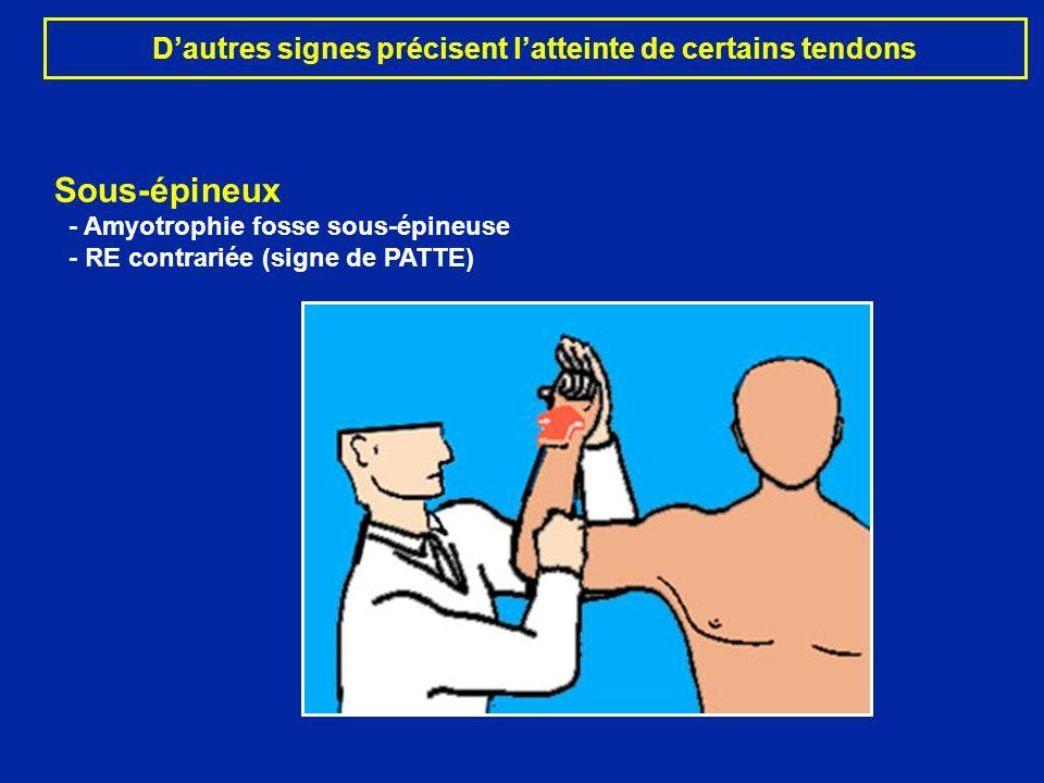 D'autres signes précisent l'atteinte de certains tendons