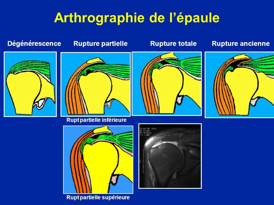 Arthrographie de l'épaule