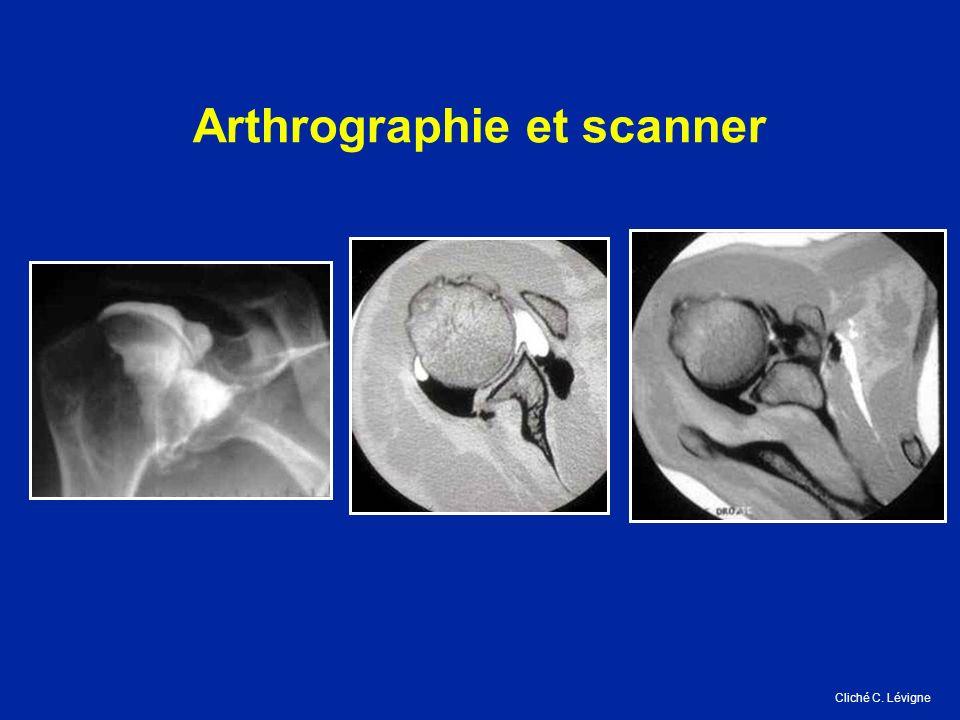Arthrographie et scanner