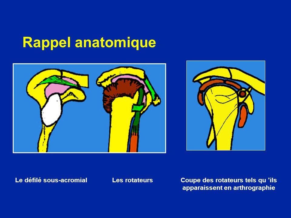 Rappel anatomique Le défilé sous-acromial Les rotateurs Coupe des rotateurs tels qu 'ils apparaissent en arthrographie.