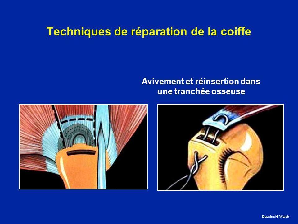 Techniques de réparation de la coiffe