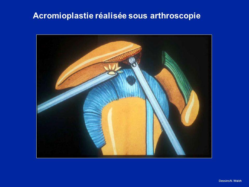 Acromioplastie réalisée sous arthroscopie