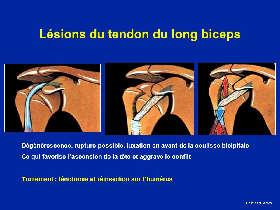 Lésions du tendon du long biceps