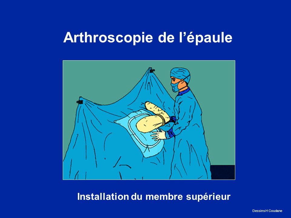 Arthroscopie de l'épaule Installation du membre supérieur