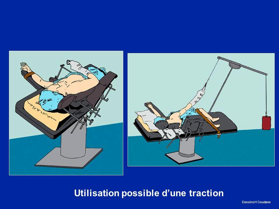 Utilisation possible d'une traction