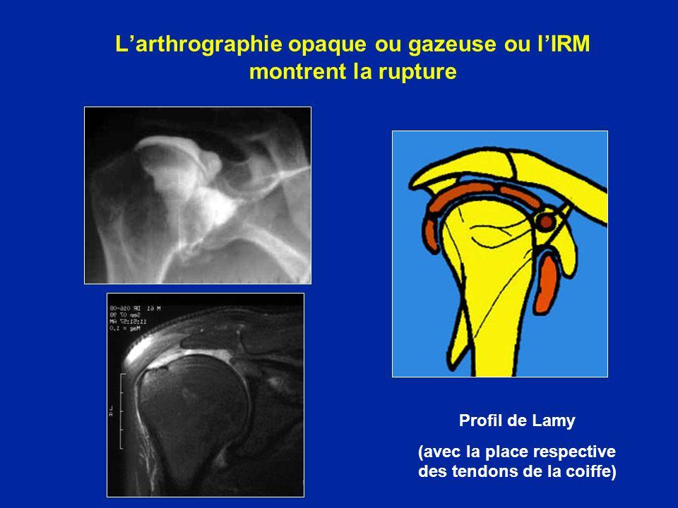 L'arthrographie opaque ou gazeuse ou l'IRM montrent la rupture
