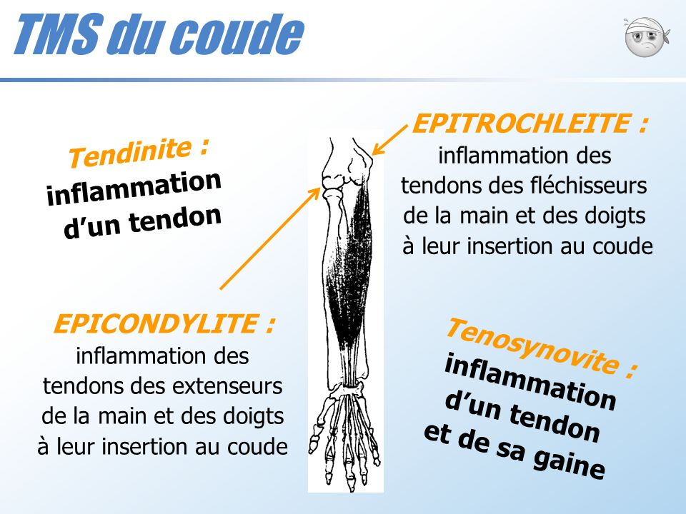 TMS du coude EPITROCHLEITE : Tendinite : inflammation d'un tendon
