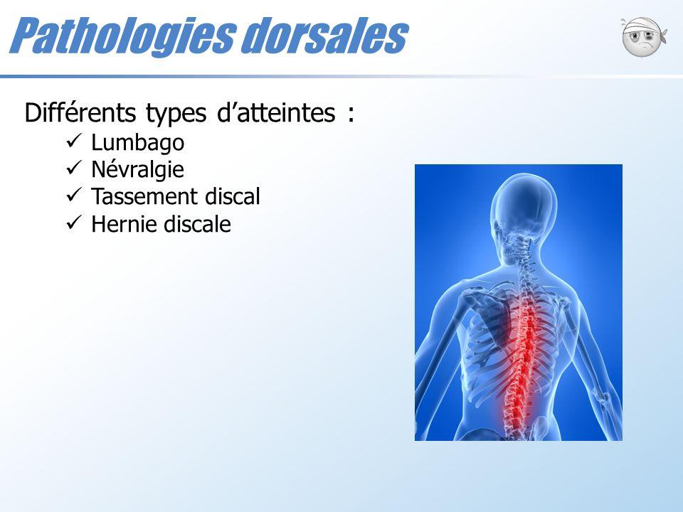 Pathologies dorsales Différents types d'atteintes : Lumbago Névralgie
