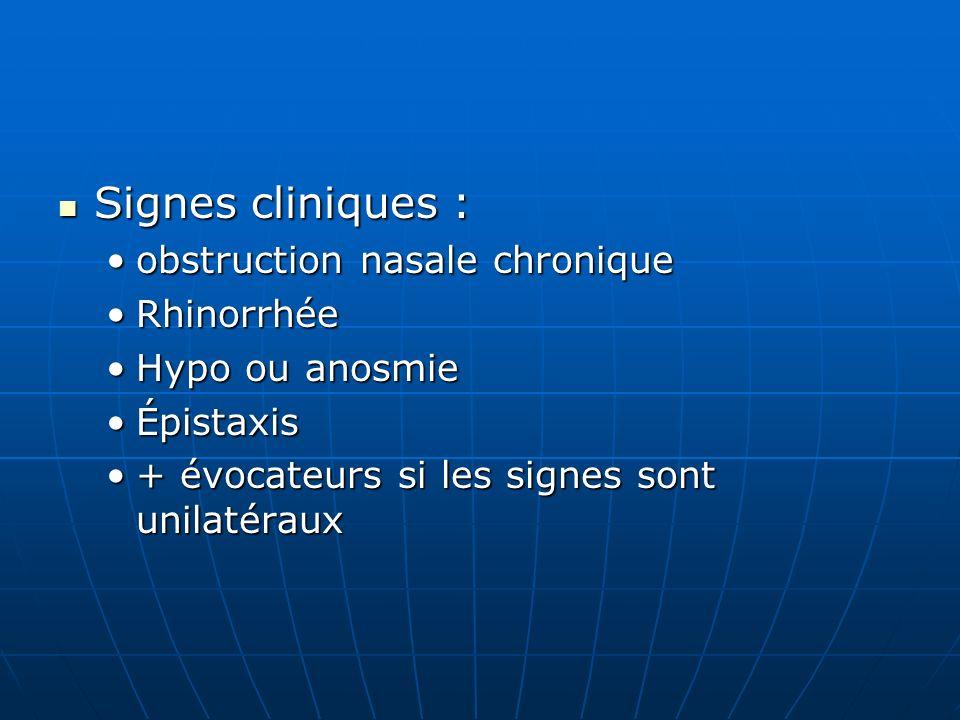 Signes cliniques : obstruction nasale chronique Rhinorrhée