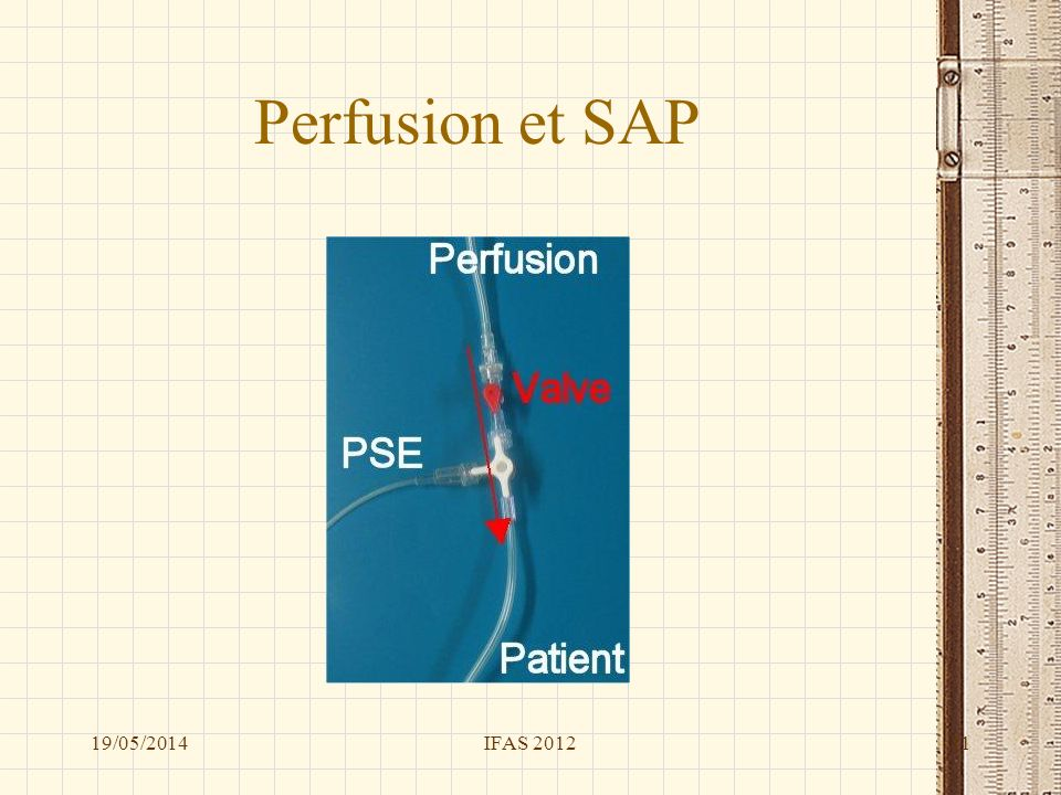 Perfusion et SAP 31/03/2017 IFAS 2012