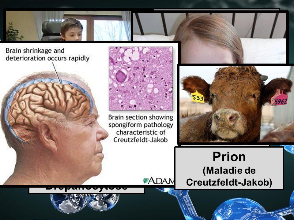 Maladies causées par les protéines