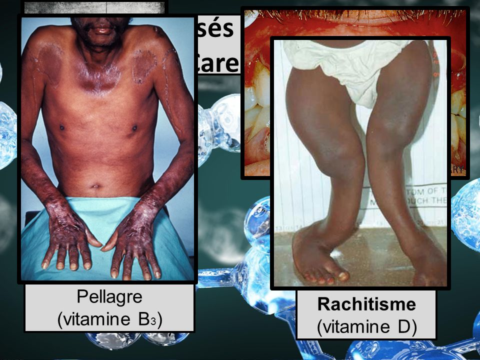 Maladies causés par les vitamines (Carences)